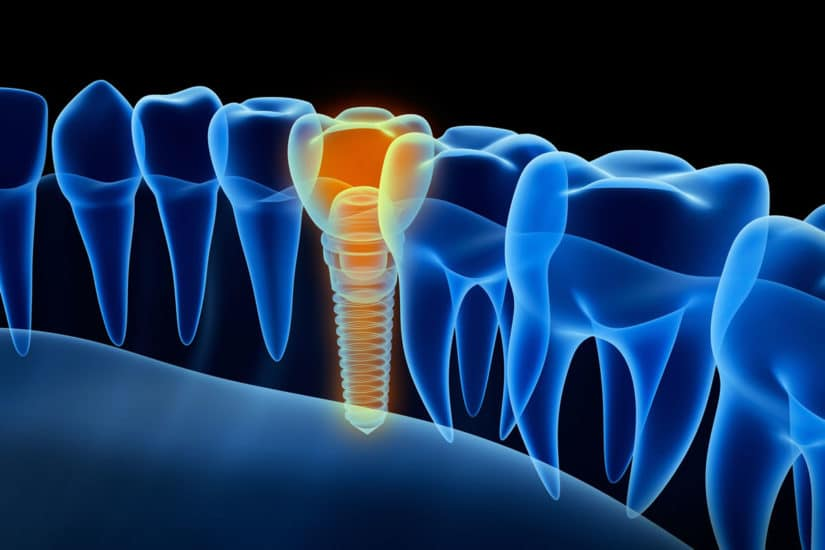 Dental Implants – Birmingham Dentists