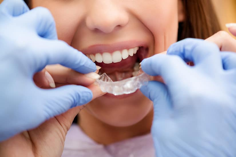Will I Have Allergic Reaction to Invisalign - Hoover AL Dental