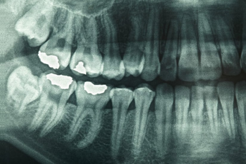 are dental x-rays ok for children living in Birmingham Alabama