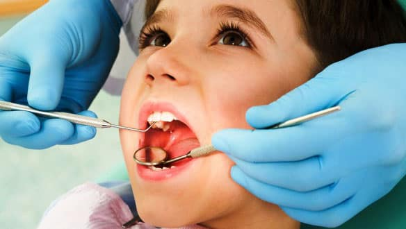 Why Children Need Cavities Filled in Hoover Alabama