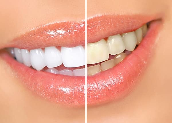 Top 3 Reasons To Whiten Your Teeth